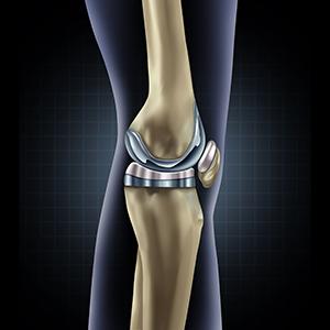 Training nach Knieprothese